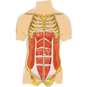 muskelkorsett-rectusdiastase
